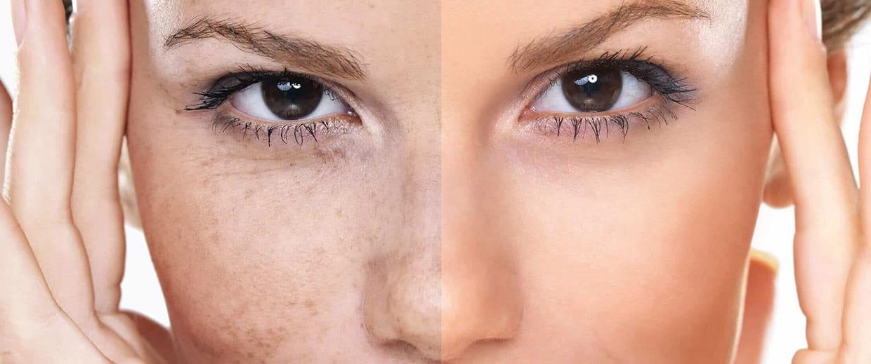 Προϊόντα Vanity Exclusive Cosmetics για Πανάδες και Δυσχρωμία