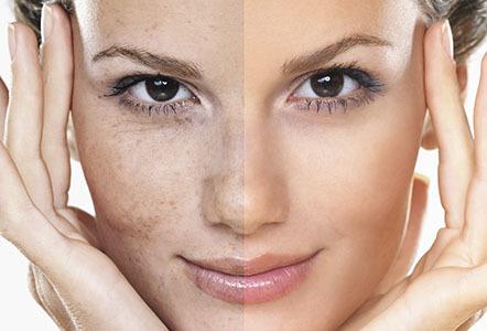 προϊόντα-vanity-exclusive-cosmetics-πανάδες-δυσχρωμία